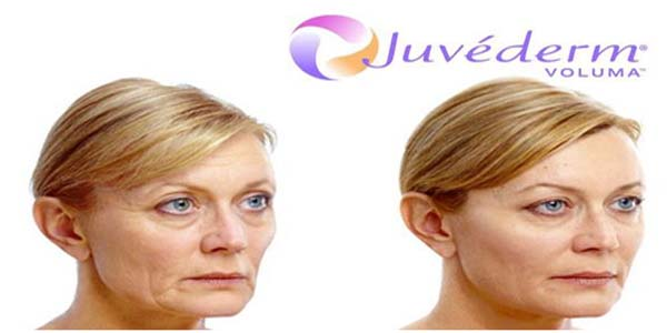 Be bold with Juvederm Voluma